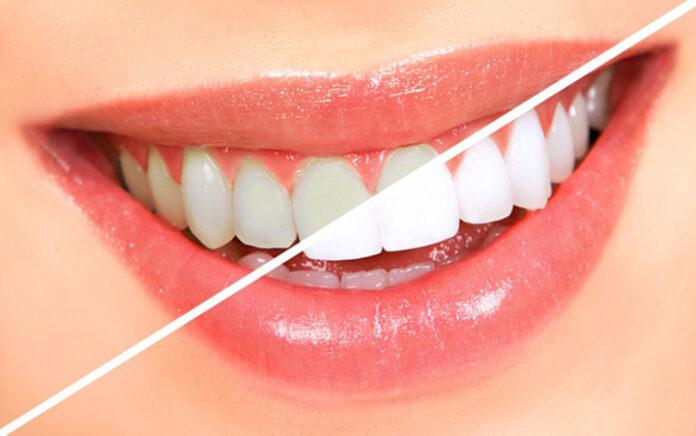 Dán trắng răng Anriea